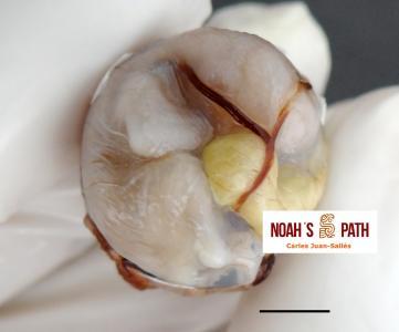 Malposición embrionaria (cabeza girada a izquierda, eje axial disposición horizontal, saco vitelino desplazado dorsalmente)
