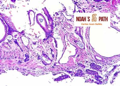Adenocarcinoma intestinal