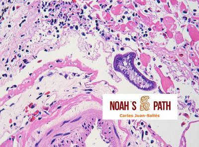 Rabdomionecrosis y pericarditis fibrinosa por trematodiasis