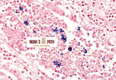 Nefritis por microsporidios, tinción de Gram
