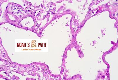 Dilatación tubular renal con infección luminal por flagelados