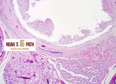 Cloacitis con infección cloacal invasiva (y renal ascendente) por flagelados