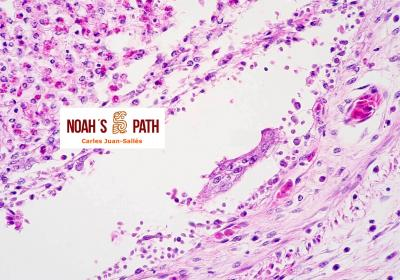 Cloacitis con infección cloacal invasiva por flagelados